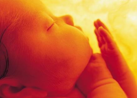 新生儿黄疸是什么?宝宝黄疸高怎么办?