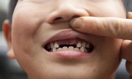 原因一:唇系带的缘故