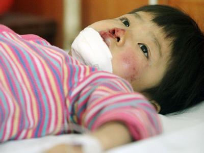 春节期间宝宝意外伤害的预防与急救措施
