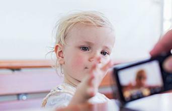 什么时候给宝宝去除胎记好?胎记去除后如何护理