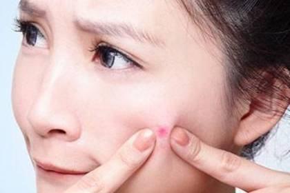 孕妇脸上长痘痘是怎么回事?孕期长痘痘如何消除