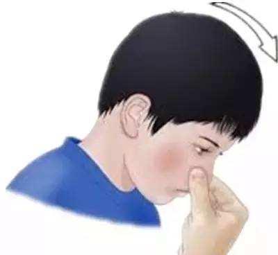 孩子经常流鼻血是什么原因?孩子常常流鼻血怎么办