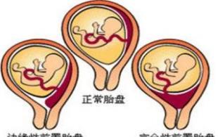 胎盘位置低是什么原因引起的?胎盘位置偏低怎么办