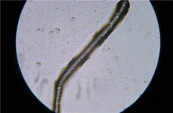 孕妇体内有寄生虫有什么症状?孕妇怀疑体内有寄生虫需要做什么检查