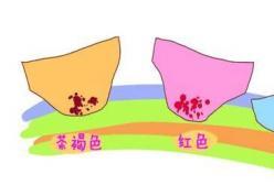 怀孕晚期见红多久能生?见红应注意什么