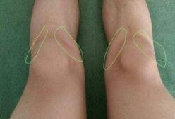 孩子持续膝盖痛要警惕儿童股骨头缺血性坏死